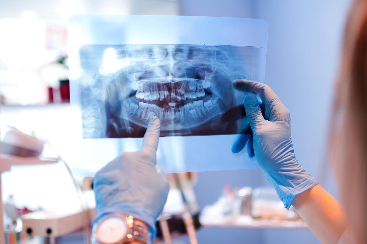 Un dentiste qui regarde une radio des dents
